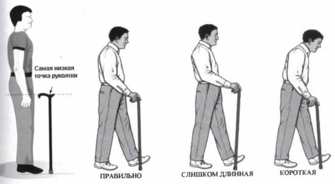 Точка опоры. Выбираем трость для ходьбы. Как после перелома ноги ...